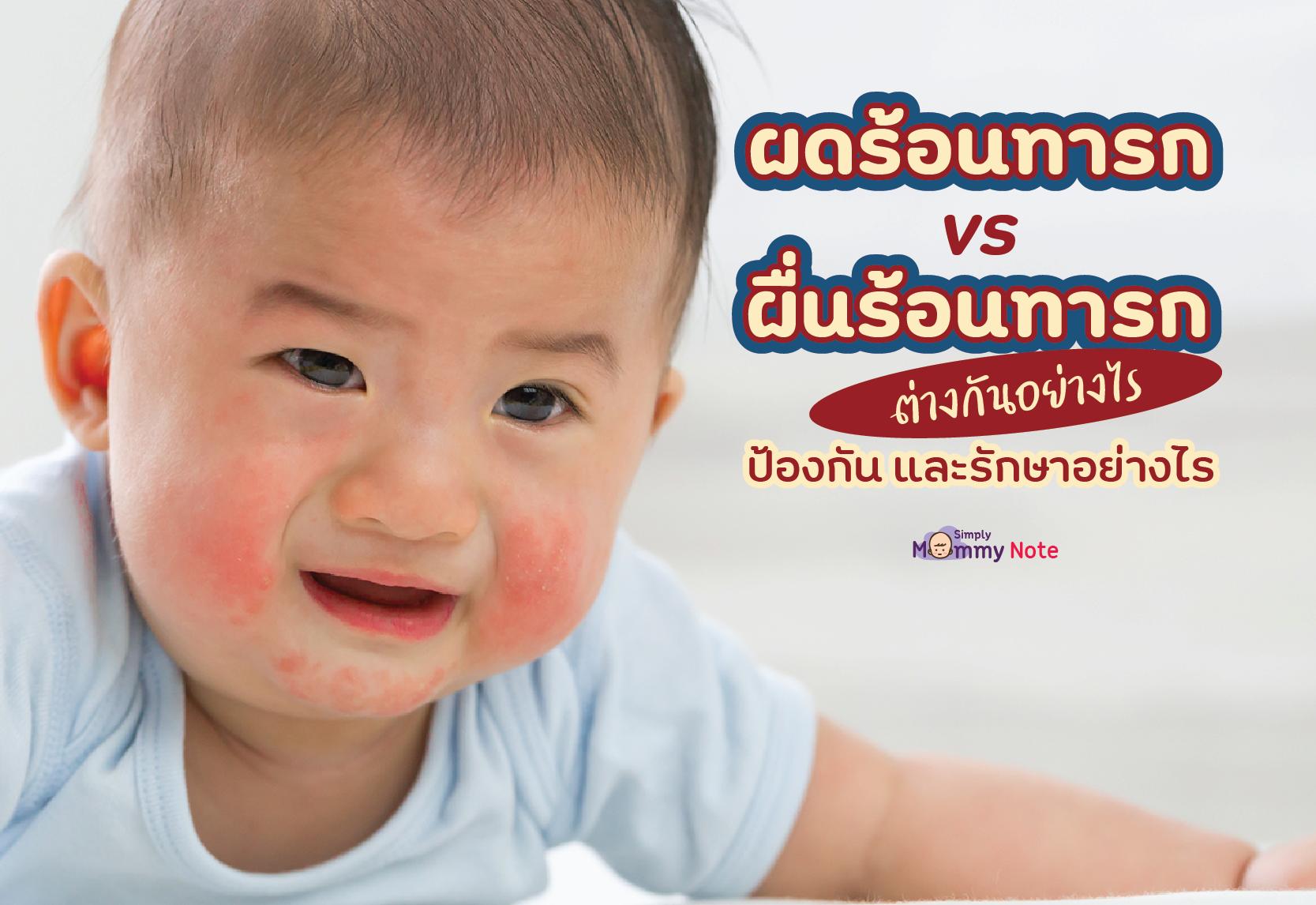 ผดร้อนทารก VS ผื่นร้อนทารก ต่างกันอย่างไร ป้องกัน และรักษาอย่างไร